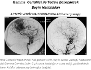 Gamma Cerrahi 1