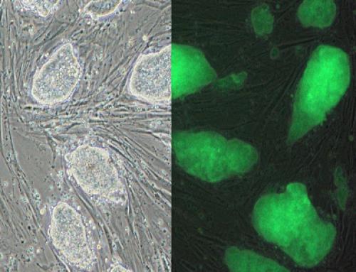 Kök Hücrenin Patentlenebilirliği Konusunda Çeşitli Raporlar – Ünal Tekinalp